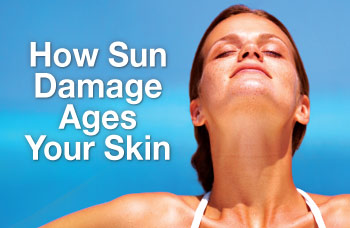 Sun Damage – Not A Chance To Get