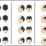 Do's And Don'ts How To Prevent Pre-Mature Baldness