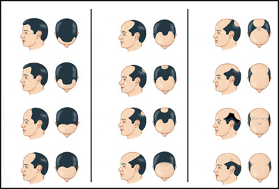 Do's And Don'ts: How To Prevent Pre-Mature Baldness